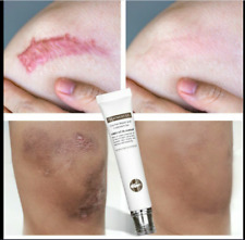 Repair Scar Gel Removal Scar Acne Cream Treatment Marks For Face Body Pigmentat
