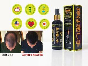 Organic Hair Growth Serum for Stronger Thicker Longer Hair Japan Made