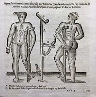 Prothèse d'Ambroise Paré 1614 Chirurgie Orthopédique Médecine Appareillage