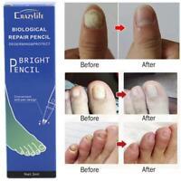Pro Anti Fungal Nail Treatment Repair Finger Toe Care Nail Fungus Liquid Pen 3ml