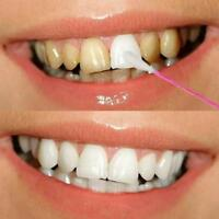 Charming White Teeth Effect Clean Stained Black Yellow Teeth WHITENING U THEETHG