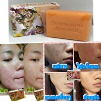 CARROT WHITE SOAP SPEED AURA FOR Facial & body,Bleaching,CLEAR ACNE,80 G.
