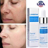 New Hyaluronic Acid Snail Essence Moisturize Acne Treatment Skin Care Face Serum