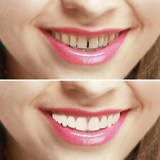 Imako Cosmetic Teeth Cover. Instant Smile. Hollywood Bleached. Simon Cowel