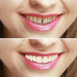 NEW PACK. Imako System Cosmetic Teeth Cover, Instant Smile. Natural or Bleached.