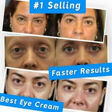 Best 100%  Under Eye Cream Remove Dark Circles Wrinkles Face Lines Puffy Eyes