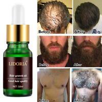 Hair Growth Essential Oil Hair Loss Care Liquid Essence Beauty Dense Hair Serum