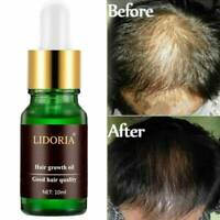 7 Day Ginger Germinal Fast Hair Growth Serum Hairdressing Oil Loss Treatement