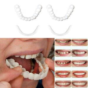 UK Snap On False Teeth Upper & Lower Dental Veneers Dentures Tooth Cover Set