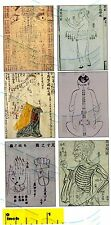 DOLLSHOUSE Mini Physician Doctor Medical Medieval Acupuncture Prints - CDHM 1:12