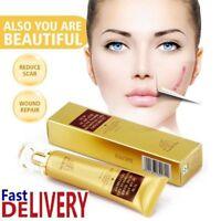 LanBeNa TCM Acne Scar Mark Removal Cream Ointment Facial Blemish Skin Repair Gel