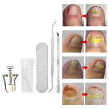 6 pcs Ingrown Toe Nail Fixer Pedicure Toenail Recover Correction Lifter Tool Set