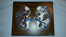 Excellent Kidneys Anatomical Model Bobbitt Laboratories