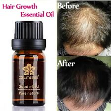 HOT Unisex Natural Hair Loss Treatment Herbal Essence Hair Fast Growth Herbs Oil