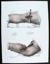 1866,BOURGERY HAND COLOR FOLIO SURGERY BINDING OF THE POPLITEAL ARTERY X9G