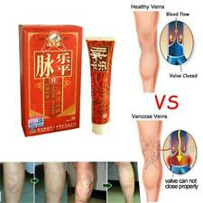 UK  Medical Varicose Cream Veins Treatment Leg Acid Bilges Itching Earthworm
