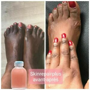 New Hand and Feet Strong Whitening Dark Knuckles Lightening Serum Clear Up Clean