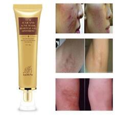 Akne-Narben-Abbau-Creme-Haut-Reparatur-Gesichtscreme-Akne- -Behandlungs