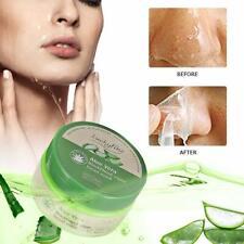 Aloe Vera Mint Blackhead Acne Removal T Zone Oily Face Skin Day Peel Cream Mask