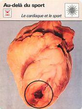 FICHE CARD Cardiaque et le Sport Prévention Infartus Myocardique Medecine 70s