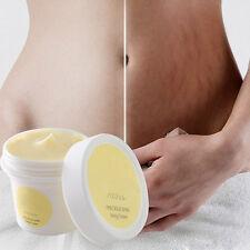 Cream Remove Scar Stretch Marks Postpartum Maternity Skin Body Repair Care