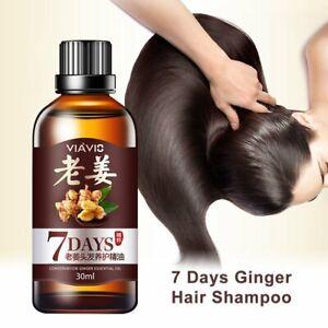 7 Days Hair Regrowth Serum Ginger Oil Anti Loss Treatment Essence V3