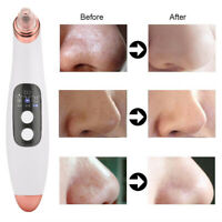 Electric Blackhead Remover Facial Skin Pore Cleaner Vacuum Acne Cleanser