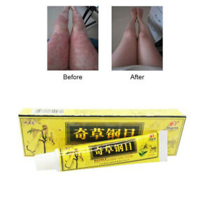 Advanced Body Psora PS Cream Perfect for Ointment Herbal Creams Health Care