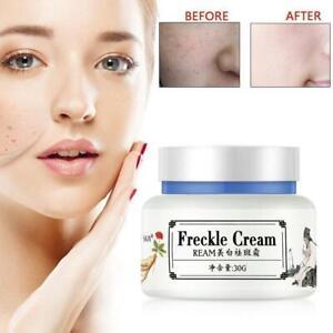 Strong Effect Whitening Freckle Cream 30g Remove Melasma Acne Dark Spot Pigment+