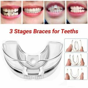 3Stages Tooth Orthodontic Appliance Silicone Material Alignment Braces for Tooth