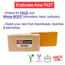 Salicylic Acid Sulfur Soap for Acne Treatment Blemishes Blackheads Oily Skin