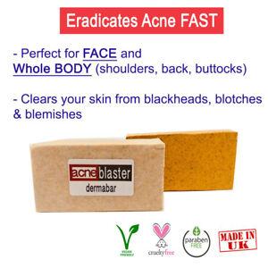 Salicylic Acid Sulfur Soap for Acne Treatment Blemishes Blackheads Oily Skin