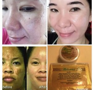Melasma Night Cream And Soap Remove Dark Spot Lighten Melasma 100% Effective
