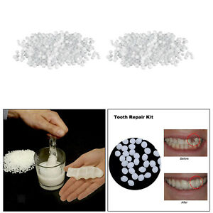 Replacement Thermal Fitting Beads Moldable Denture Temporary Teeth Repair