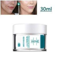 Acne Treatment Face Cream Anti Acne Scar Removal Pimple Blackhead Moisturiz Z5U1