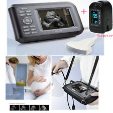 Portable Laptop Machine Digital Ultrasound Scanner System 3.5 Convex Probe+ SPO2