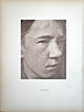 Hand Colored Collotype from Photographic Illustrations of Skin Diseases (I)
