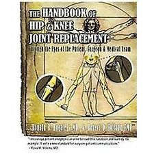 Handbook of Hip & Knee Joint Replacement: Through the Eyes of the Patient, Surge