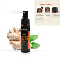 30ml Natural Anti Hair Loss Growth Liquid Spray for Women Men Regrowth Hair UK