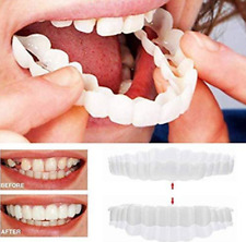 Snap-On Smile Braces Free Delivery