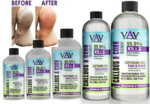 CALLUS & CORN Remover Liquid - Treatment for Foot & Hand, Pain Free Removal Oil
