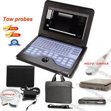 Laptop digitale portatile del monitor ecografo 3.5M Convex,Micro convessCMS600P2
