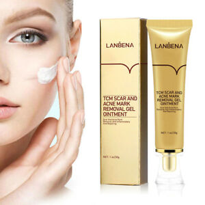 LanBeNa TCM Scar and Acne Mark Removal Ointment Gel OINTMENT pimple scars USA
