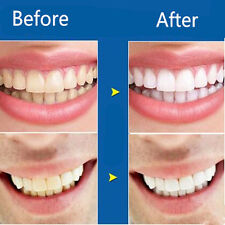 Tooth Stickers Whitening Teeth for Yellow Smoke Stains Remover Correction Tooth
