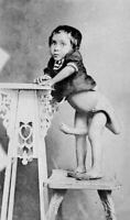 Antique Medical Oddity Parasitic Twin Photo 412 Oddleys Strange & Bizarre