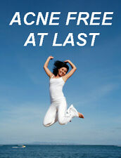 Be COMPLETELY ACNE FREE & Erase the Scars in 30 Days!!!
