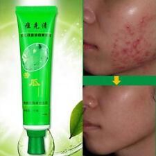 30g Face Skin Care Acne Cream Oil Control Acne Products Face Cream beauty Cream