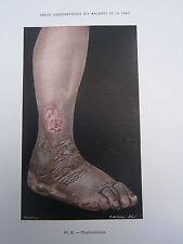 Gravure médecine couleur 1900 maladie de la peau : ELEPHANTIASIS