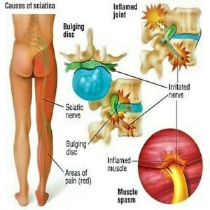 Natural Sciatica SC2000 Cream Reduce Painful Nerve Inflammation Shooting Pain