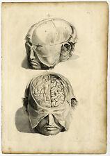 5 Medical Antique Prints-T.5-9.-HUMAN BRAIN-SKULL-Bidloo-Lairesse-1685
